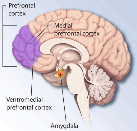 Ptsd-brain (1)